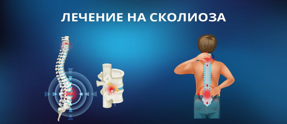 lechenie-na-skolioza